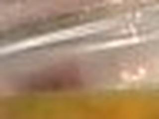 Hawt nurse urinates into a medical vessel